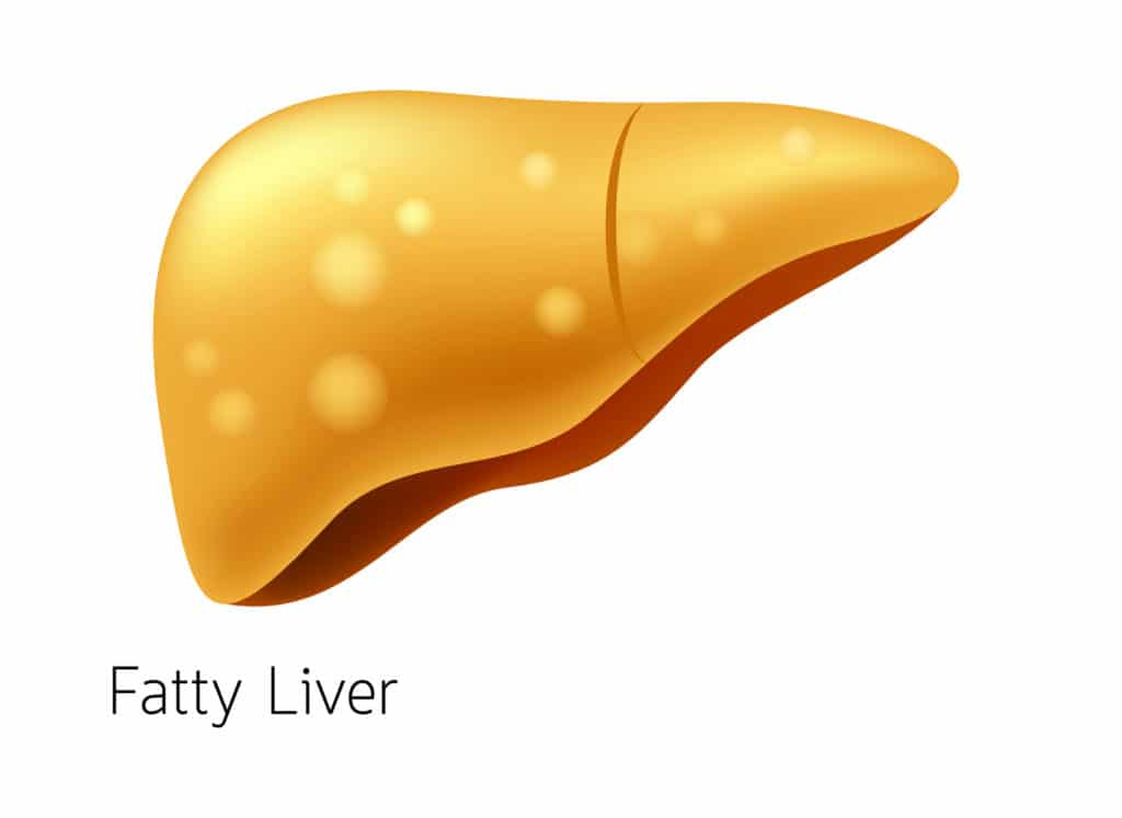 Early Symptoms Of Liver Disease In Alcoholics And Non-Alcoholics