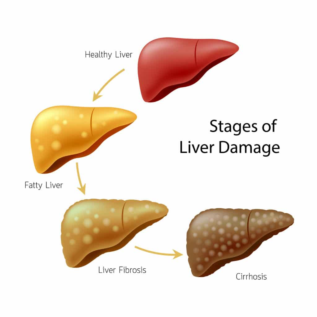 Early Symptoms Of Liver Disease In Alcoholics And Non ...